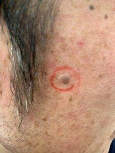 ジョウクリニックのほくろ除去・あざ治療・イボ治療の症例写真[ビフォー]