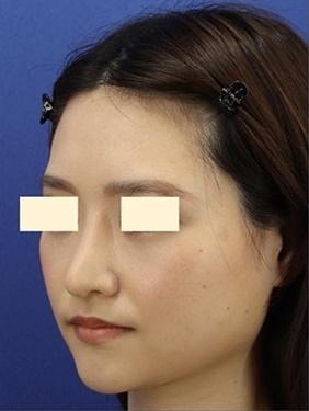 プロテーゼの入れ替え、鼻先の形成(肋軟骨)術後1ヶ月の症例写真[アフター]