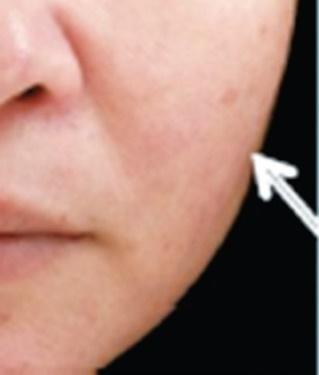 さくらこまち皮フ科クリニックのシワ・たるみ(照射系リフトアップ治療)の症例写真[アフター]