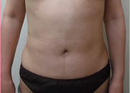 城本クリニックの脂肪吸引の症例写真[アフター]