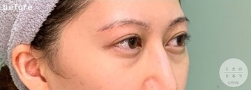 くさのたろうクリニックの目元整形・クマ治療の症例写真[ビフォー]