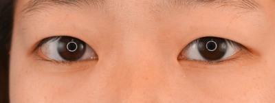 グランドループ法(二重埋没法)術後1週間 女性 10代の症例写真[ビフォー]