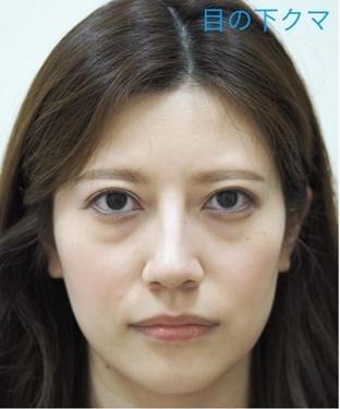 Theoryクリニック (セオリークリニック)の目元整形・クマ治療の症例写真[ビフォー]