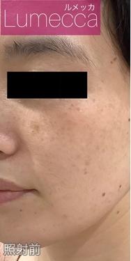 La Clinique Ginza(ラ クリニック銀座)のシミ治療(シミ取り)・肝斑・毛穴治療の症例写真[ビフォー]