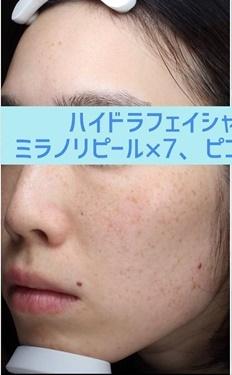 銀座長瀬クリニックのシミ取り・肝斑・毛穴治療の症例写真[ビフォー]