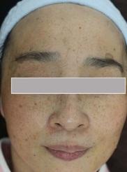 杉本クリニック 美容皮膚科・皮膚科の症例写真