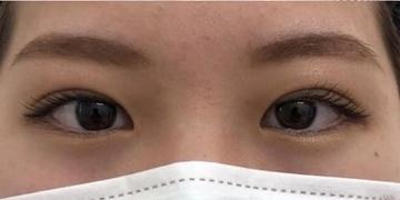 SELECT CLINIC(セレクトクリニック)の目・二重整形の症例写真[アフター]