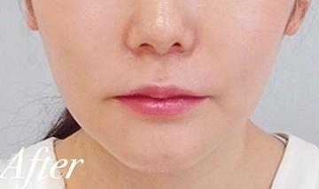 表参道スキンクリニックの顔のしわ・たるみの整形(リフトアップ手術)の症例写真[アフター]