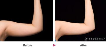 自由が丘クリニックの痩身、メディカルダイエットの症例写真