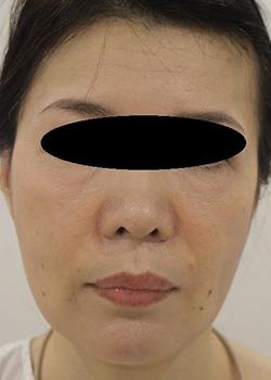 ヒアルロン酸・ボトックス注入による小顔治療の症例写真[ビフォー]