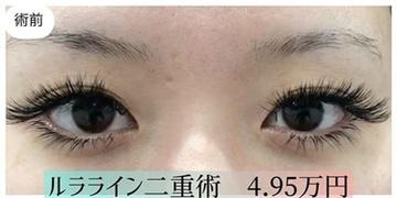 ルラ美容クリニックの目・二重整形の症例写真[ビフォー]