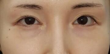 湘南美容クリニック 赤羽院の目元の整形、くま治療の症例写真[ビフォー]