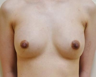 当院豊胸術後(サイズ入れ替え)の症例の症例写真[アフター]
