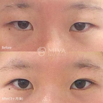 MIYAフェイスクリニックの目・二重の整形の症例写真