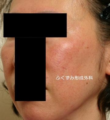 ふくずみ皮フ科形成外科のアンチエイジング・美容点滴の症例写真[ビフォー]