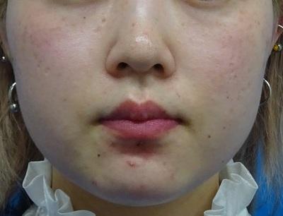 TCB式小顔美肌再生 ダイヤモンドの症例写真[ビフォー]