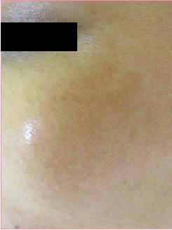 城本クリニックのシミ治療(シミ取り)・肝斑・毛穴治療の症例写真[アフター]