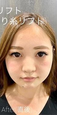 ルラ美容クリニック高田馬場院の顔のしわ・たるみの整形(リフトアップ手術)の症例写真[アフター]