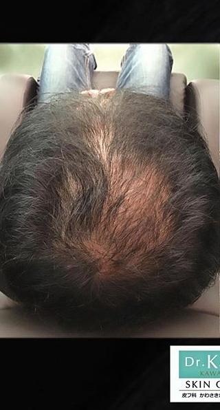 皮フ科 かわさきかおりクリニックの薄毛治療・AGA・発毛の症例写真[ビフォー]