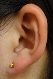 東京中央美容外科・美容皮膚科のピアス穴あけの症例写真
