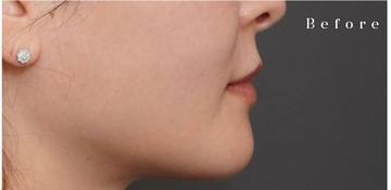 アーククリニックの口元・唇の整形の症例写真[ビフォー]