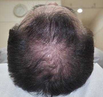 タウン形成外科クリニックの薄毛治療・AGA・発毛の症例写真[アフター]