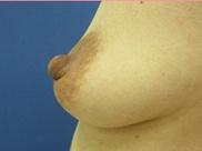 城本クリニックの乳首・乳輪の整形の症例写真[ビフォー]