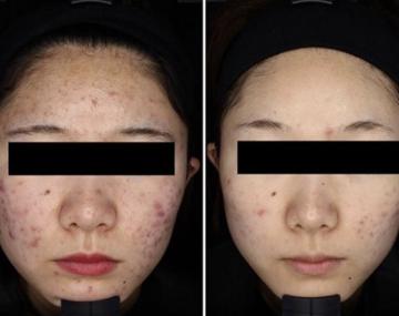 ゆみ美容皮膚科クリニックのニキビ治療・ニキビ跡の治療の症例写真