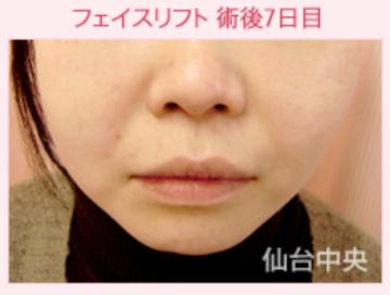 仙台中央クリニックの顔のしわ・たるみの整形(リフトアップ手術)の症例写真[アフター]