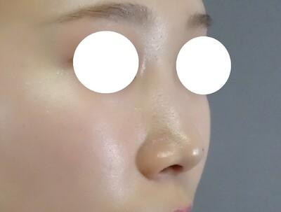 TCB式鼻先尖鋭術 プレミアムの症例写真[ビフォー]