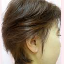 円形脱毛症の治療[アフター]