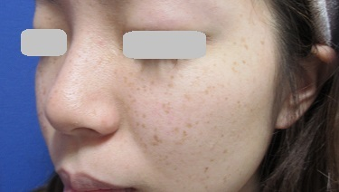 そばかす・シミ治療(フォトRF SR)の症例写真[ビフォー]