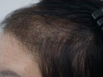 静岡美容外科橋本クリニックの薄毛治療・AGA・発毛の症例写真[アフター]
