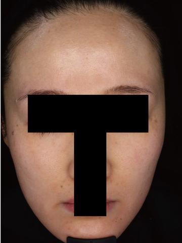 すなおクリニックのシミ取り・肝斑・毛穴治療の症例写真[アフター]