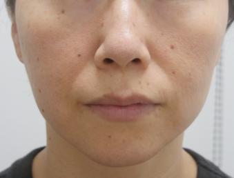 静岡美容外科橋本クリニックの輪郭・顎の整形の症例写真[ビフォー]