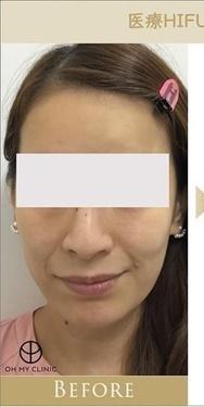 オーマイクリニック【Oh My Clinic】のリフトアップレーザーの症例写真[ビフォー]