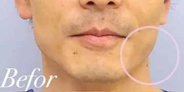 表参道スキンクリニックの医療脱毛の症例写真[ビフォー]