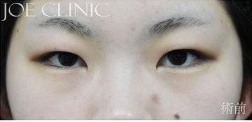 ジョウクリニックの目・二重整形の症例写真[ビフォー]