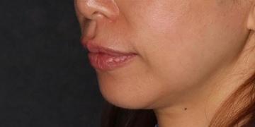 SELECT CLINIC(セレクトクリニック)の口もと、唇の整形の症例写真[アフター]