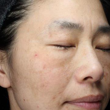 肌と歯のクリニック 東京ベイ幕張のシミ治療(シミ取り)・肝斑・毛穴治療の症例写真[ビフォー]