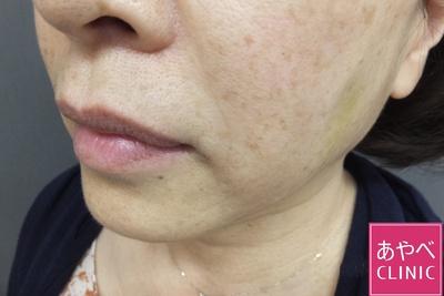 ヒアルロン酸注入(ほうれい線)の症例写真[アフター]
