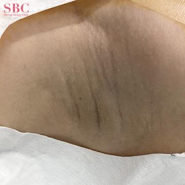 湘南美容クリニック 岡山院のわきが手術・多汗症治療の症例写真[ビフォー]