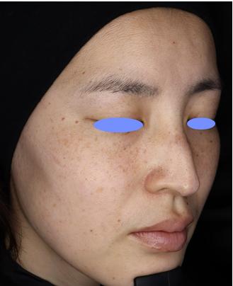 レア形成外科・美容皮膚科のシミ取り・肝斑・毛穴治療の症例写真[ビフォー]