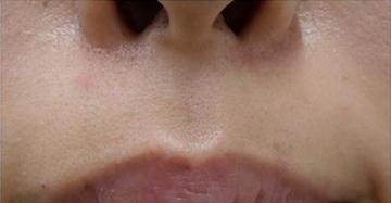 静岡美容外科橋本クリニックのホクロ除去・あざ治療・イボ治療の症例写真[アフター]
