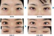秋葉原美容クリニックの目・二重の整形の症例写真