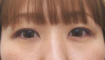 東京美容外科 青森院の症例写真[アフター]