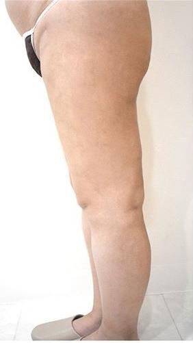 ジョウクリニックの脂肪吸引の症例写真[アフター]