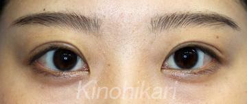 樹のひかり 形成外科・皮ふ科の目・二重整形の症例写真[アフター]