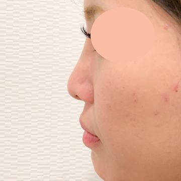 A CLINIC(エークリニック)の鼻の整形の症例写真[アフター]