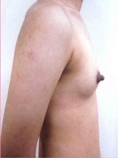 ■脂肪注入法+PRP療法の症例写真[アフター]